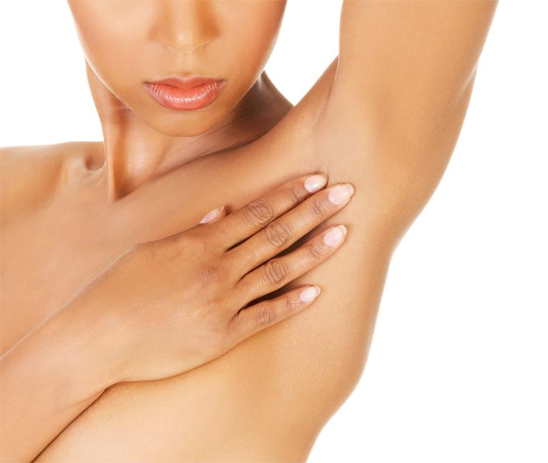 Miradry Ny Underarm Sweat Treatment