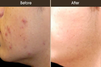 Acne Treatment New York
