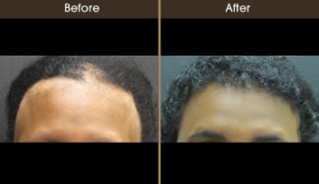 Hair Loss Treatment Before And After Front View