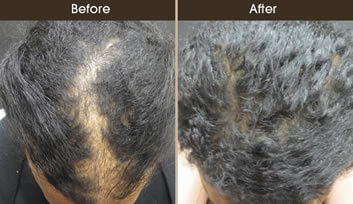 Hair Loss Treatment Before And After Top View