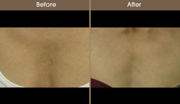 Before And After Sun Damage Treatment