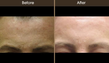 Sun Damage Treatment Before And After Front View
