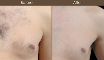 Laser Hair Removal New York Laser Hair Removal Treatment Ny