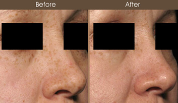 Skin Resurfacing Results