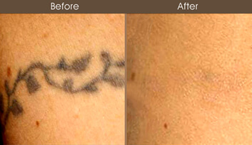 100 laser tattoo removal manhattan nyc tattoo for Laser tattoo removal manhattan