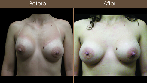 Breast Reconstruction Before And After Front Image