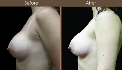 Breast Reconstruction Before And After Left Side Image