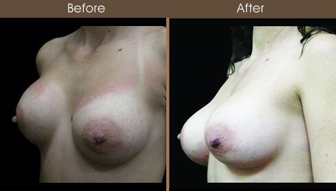 Breast Reconstruction Before And After Left Quarter Image