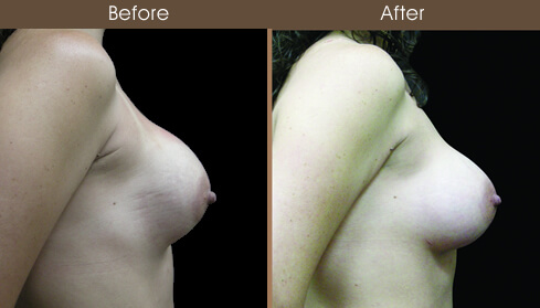 Breast Reconstruction Before And After Right Side Image