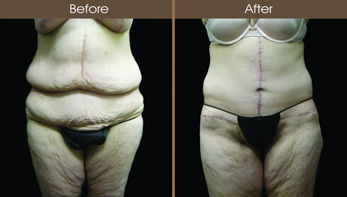 Body Lift Before And After Front Image