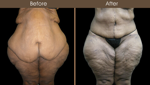 Lower Body Lift Surgery Before And After Front View