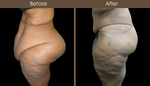 Lower Body Lift Surgery Before And After Left Side View