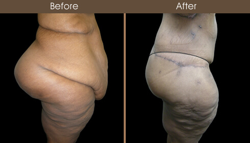 Lower Body Lift Surgery Before And After Right Side View