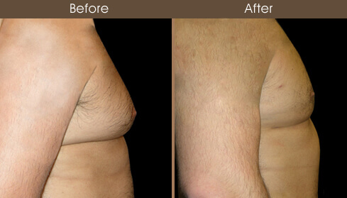 Breast Reduction For Men Before And After Side Image