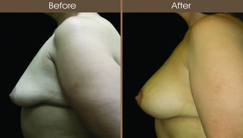 Before And After Post Bariatric Surgery