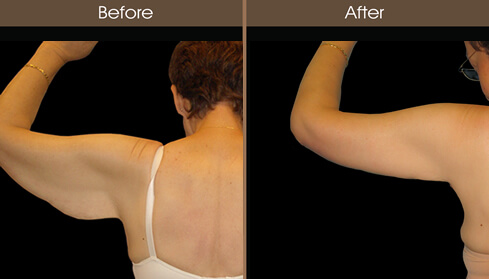 Arm Lift Before And After Back Image