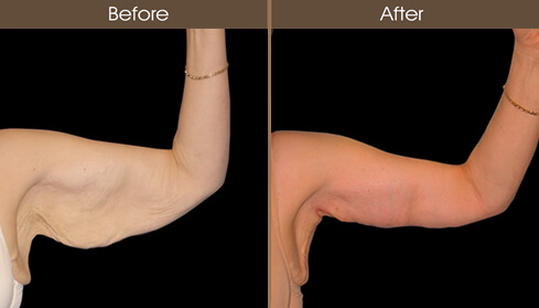 Arm Lift Before And After Front Image