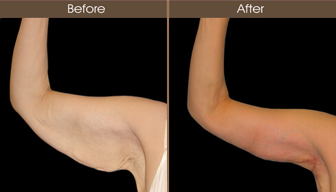 Arm Lift Before And After Front View