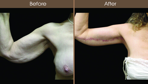 Before And After Brachioplasty