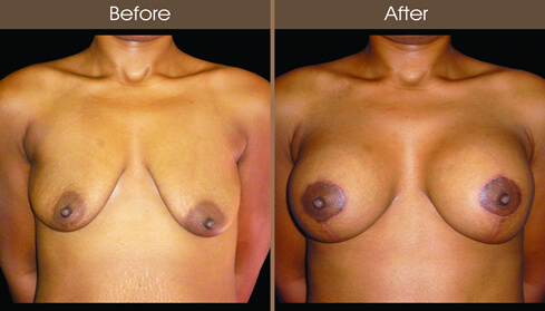 Mastopexy Before And After Front View