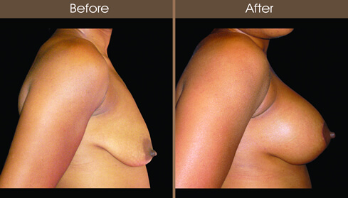 Mastopexy Before And After Right Side View