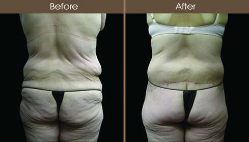Post Bariatric Surgery Abdominoplasty Before And After Back Image