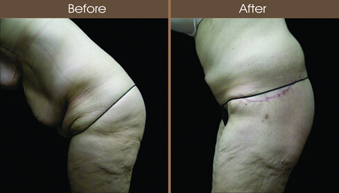 Post Bariatric Surgery Abdominoplasty Before And After Side Image