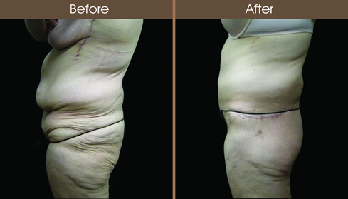 Post Bariatric Surgery Abdominoplasty Before And After