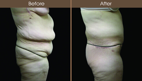 Post Bariatric Surgery Tummy Tuck Before And After