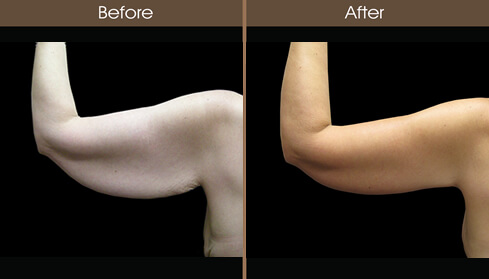 Post Bariatric Surgery Arm Lift Before And After