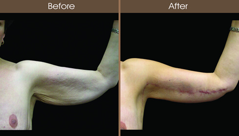Post Bariatric Surgery Arm Lift Results