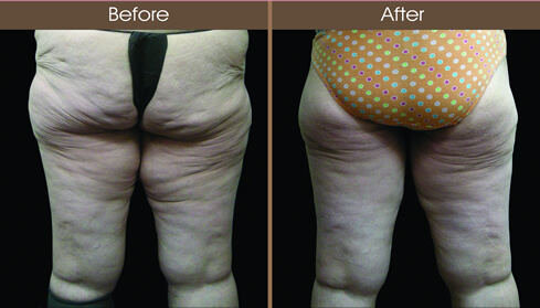 Post Bariatric Surgery Buttocks Augmentation Before And After