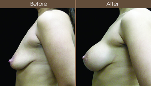 Breast Implant Surgery Before And After Left Side Image