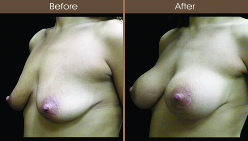 Breast Implant Surgery Before And After Left Quarter Image