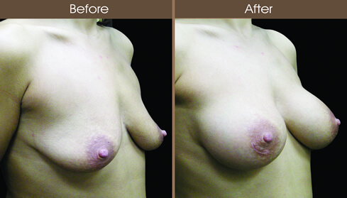 Breast Implant Surgery Before And After Right Quarter Image
