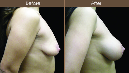 Breast Implant Surgery Before And After Right Side Image