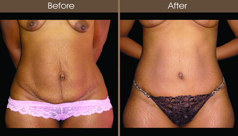 Mommy Makeover Tummy Tuck Before And After