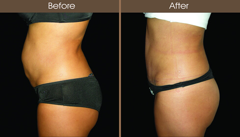 Mommy Makeover Tummy Tuck Before And After Left Side View