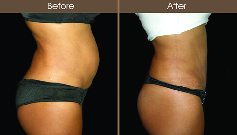 Mommy Makeover Tummy Tuck Before And After Right Side View