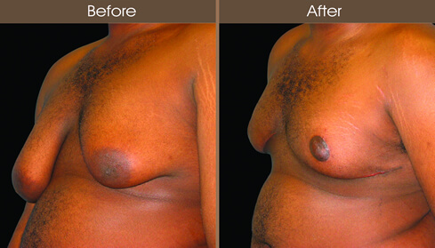 Male Breast Reduction Surgery Before And After Left Quarter View