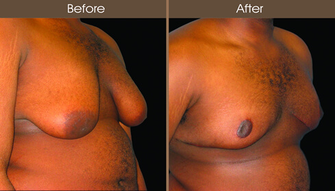Male Breast Reduction Surgery Before And After Right Quarter View