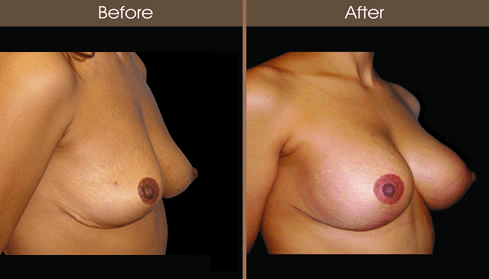 Breast Implant Before And After Right Quarter Image