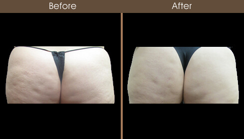 Cellulaze Results