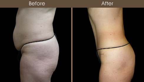Abdominoplasty Surgery Results