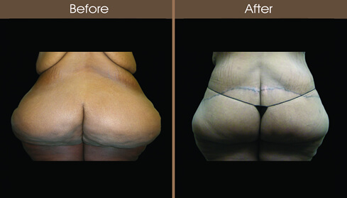 Lower Body Lift Surgery Before And After Back View