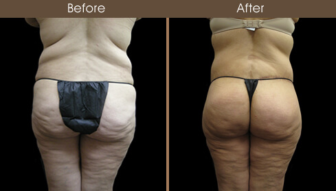 Post Bariatric Surgery Before And After Back Image
