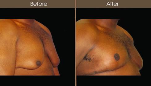 Gynecomastia Surgery Results