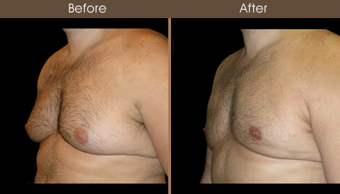 Gynecomastia Surgery Before And After Left Quarter View