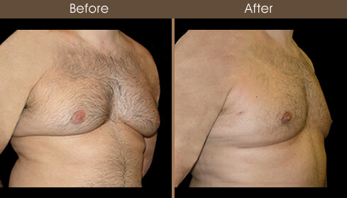 Gynecomastia Surgery Before And After Right Quarter View