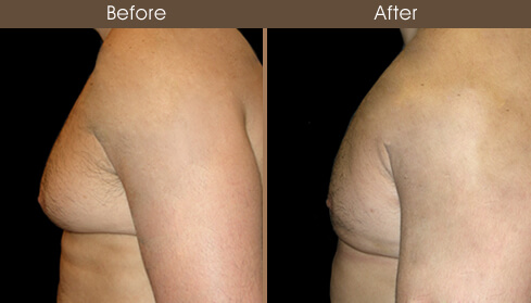 Gynecomastia Surgery Before And After Left Side View